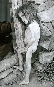 girl_affected_by_famine_in_buguruslan_russia_-_1921